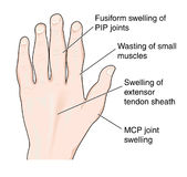 Hand showing arthritic changes. Drawing of a hand showing the typical changes associated with arthritis Stock Images