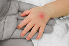 Hand of sick baby with tracks injection ( post I .V injection) o. N her mother hand Stock Photos