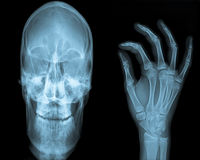 Hand & Skull X Ray. Smiling skull of a mature adult with hand Stock Photo
