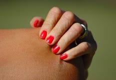 hand som skrapar skulderen Royaltyfri Fotografi