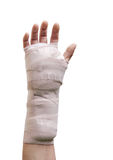 Hand Surgery. Hand in a cast  carpal tunnel surgery Royalty Free Stock Images