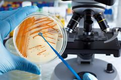 Hand of technician holding plate with bacterial colonies of Stre. Colonies of bacteria Streptococcus agalactiae in culture medium plate. Hand of technician Stock Photo