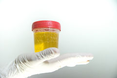 Hand with urine container. Detail of a hand with urine container royalty free stock photos