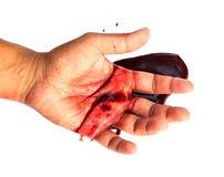 Hand van mens verwonde wond van ongeval en bloed het aftappen stock foto's