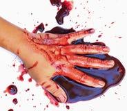 Hand van mens verwonde wond van ongeval en bloed het aftappen stock afbeeldingen
