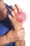 Hand van Reumatoïde Artritis wordt misvormd die Royalty-vrije Stock Foto