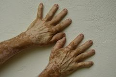 Hand with vitiligo conditions Stock Photo