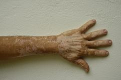 Hand with vitiligo conditions Royalty Free Stock Photos