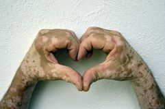 Hand with vitiligo conditions Stock Image