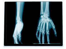 Hand and wrist radiography Stock Images