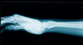Hand wrist x-ray. Radiography of a middle aged woman hand and wrist Stock Photos