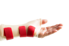 Hand with wrist and thumb splint. Isolated on white background Royalty Free Stock Photography