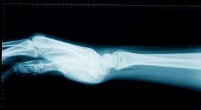 Hand wrist x-ray Stock Photos