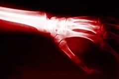 Hand x-ray Stock Image