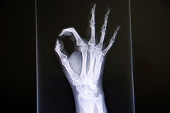 Hand X Ray Stock Photography