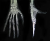 Hand X-Ray Royalty Free Stock Photos
