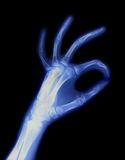 Hand X-ray Stock Image