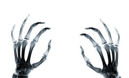 Hand X-ray rphotograph Royalty Free Stock Photography