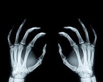 Hand X-ray rphotograph Stock Images