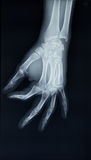 Hand x-ray view on a black background Stock Images
