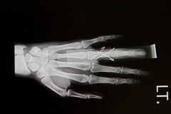 Hand x-rays image Stock Images