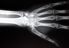 Hand xray. Hand x-ray image medical background royalty free stock images