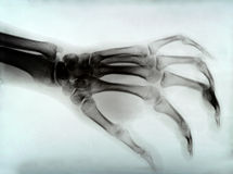 Hand xray Royalty Free Stock Photography