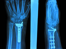 Xray of hand. Hand xray image medical background royalty free stock image