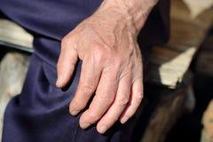Handauflagen des Mannes auf seinem Knie Stockfotos