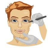 Handboklinjer för kirurgiska snitt på en tålmodig manlig framsida stock illustrationer