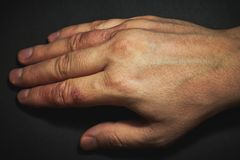 Handdermatitis Handeczema Stock Afbeelding