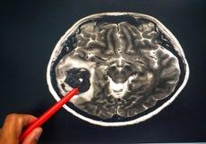 Handdoktorn som rymmer en röd penna, berättar patienten undersökningsmrihjärnan som finner hjärntumör eller mass Medicinskt arkivbilder
