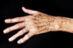 Handen av en gammal kvinna Arkivfoto