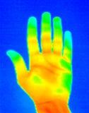 handen gömma i handflatan thermographen Arkivfoto