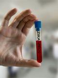 Handen rymmer provröret med blodprövkopian som smittas med ZIKA-viruset Arkivbilder
