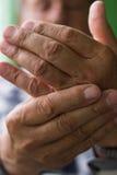 Handen smärtar royaltyfri bild