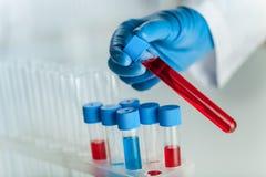 Handen van een laboratoriumtechnicus met een buis royalty-vrije stock foto