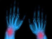 Handgelenkschmerz Stockbilder