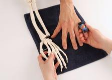 Handkirurg med den skelett- handen på patienten Arkivfoto