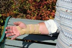 Handleden spjälkar att fästa för skada för upprepande belastning. royaltyfri bild