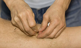 Hands applying needles to skin in acupuncture ther Stock Image