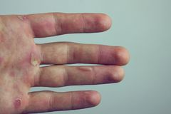 Hands with blister and callus.  royalty free stock photo