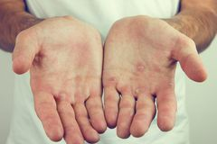 Hands with blister and callus.  stock photos