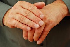 Hands that are Chapped. Aching, chapped, dry arthritic hands Stock Image