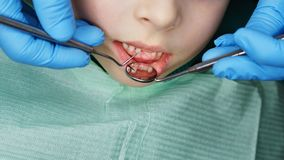 Little girl in dental clinic. Hands of dentist with medical instruments. Little girl sits in dental chair with her mouth open. Routine inspection of primary royalty free stock photos