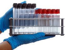 Hands with a empty test tubes and tubes with clot activator on l. Hands with an empty test tubes and tubes with clot activator on laboratory stand, white Stock Photo