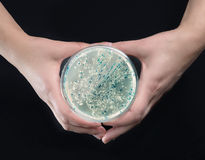 Hands holding agar plate with bacterial colonies Stock Photography