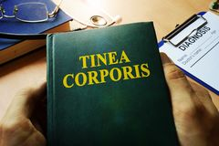 Hands holding book Tinea corporis. Hands holding a book Tinea corporis Royalty Free Stock Images
