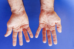 Hands of an man with Dupuytren contracture on blue Royalty Free Stock Photos