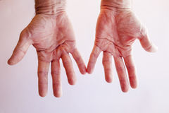 Hands of an man with Dupuytren contracture on bright Royalty Free Stock Images